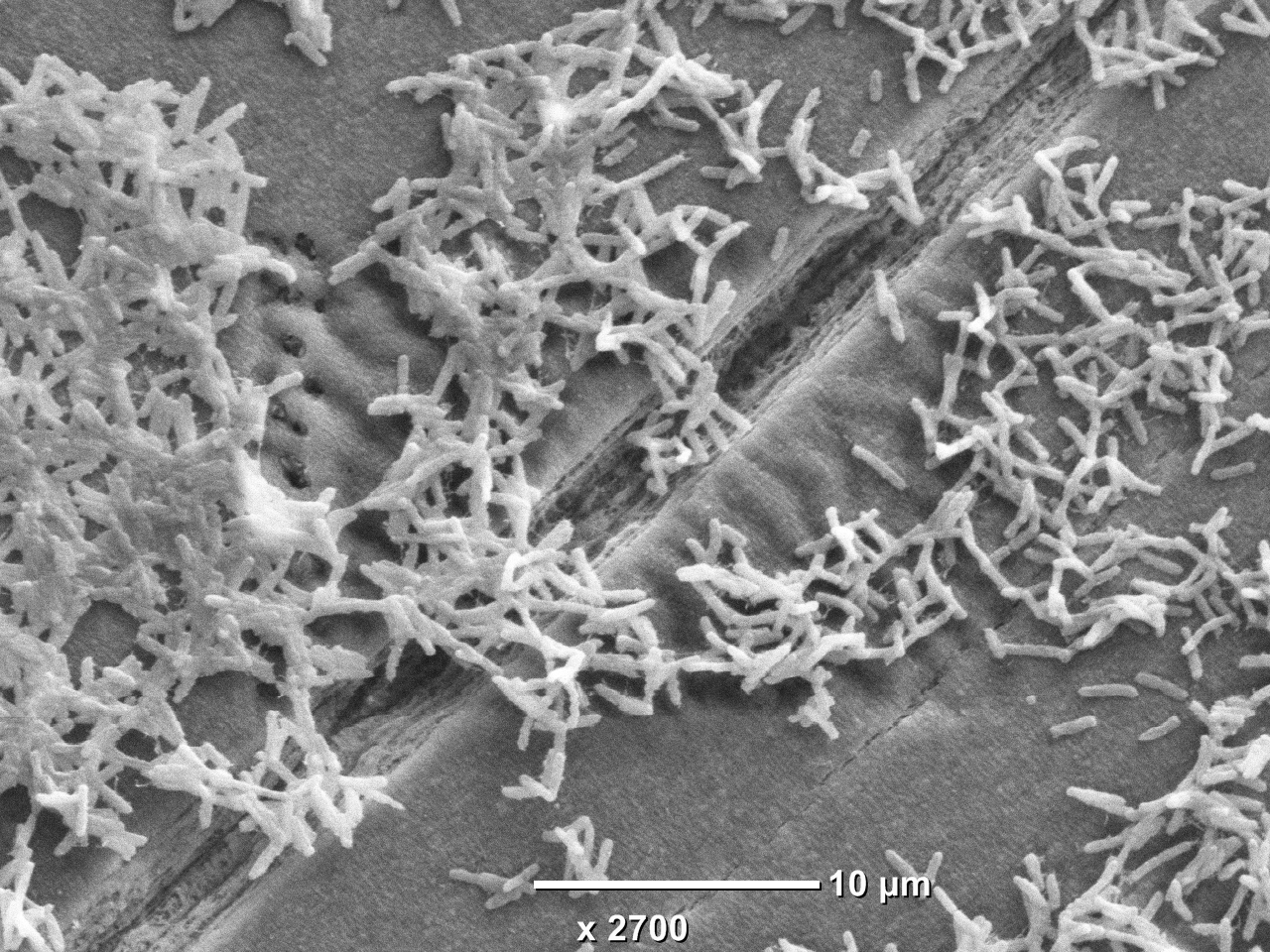 Understanding the difference between wet & dry surface biofilms